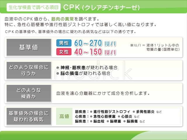 Cpk 高値