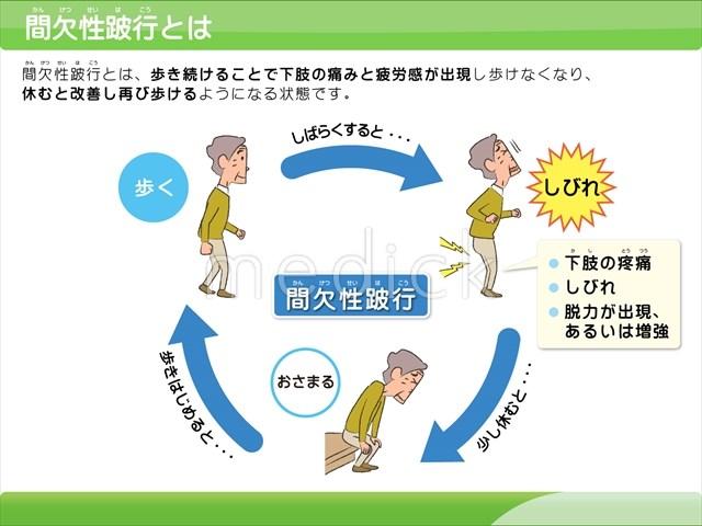 「間欠性跛行」の画像検索結果
