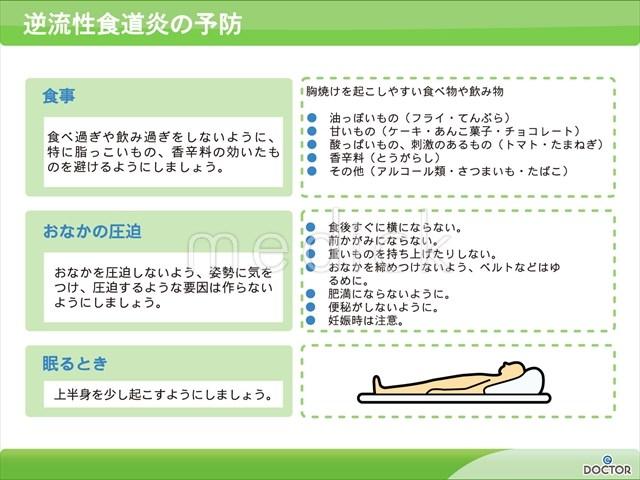 逆流 性 食道 炎 妊婦