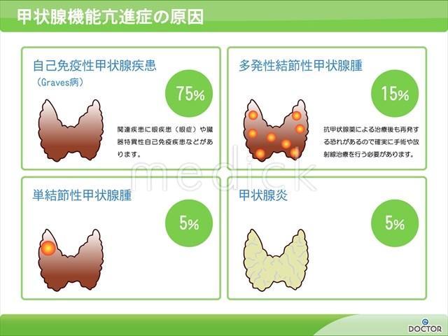 亢進 甲状腺 原因 機能 症
