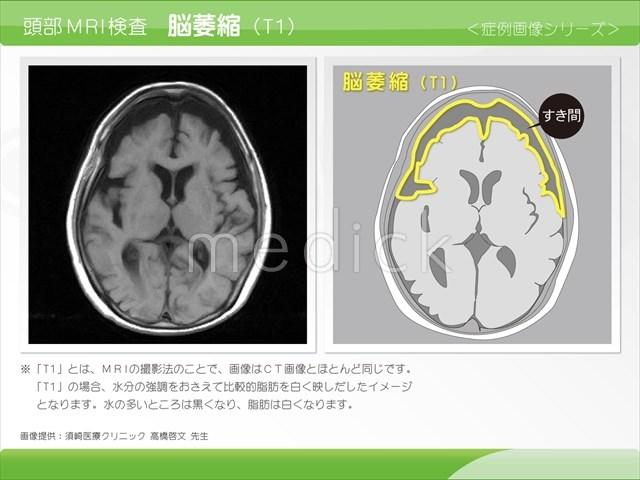 脳卒中治療薬「SB623」の開発状況は?