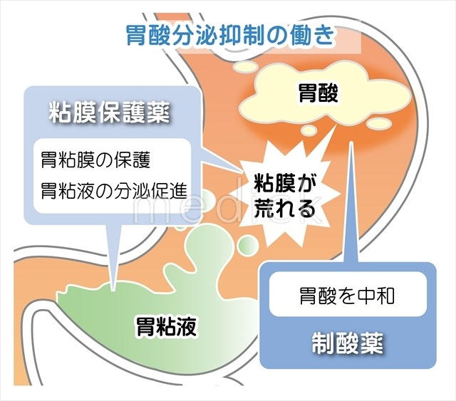 胃酸分泌抑制の働きのイラスト -...
