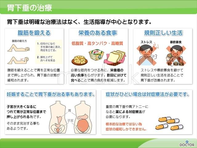 胃下垂の治療の説明スライド - 医療のイラスト・写真・動画 ...