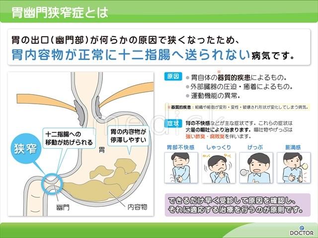 胃幽門狭窄症とはの説明スライド - 医療のイラスト・写真 ...