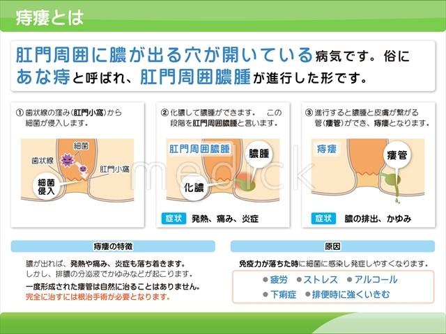 痔瘻とはの説明スライド