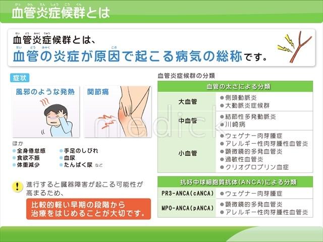 血管炎症候群とはの説明スライド - 医療のイラスト・写真・動画、素材 ...