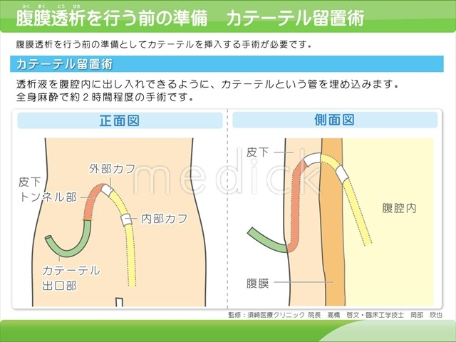 腹膜透析を行う前の準備 カテーテル留置術の説明ス... 画像をクリックして拡大イメージを表示 価
