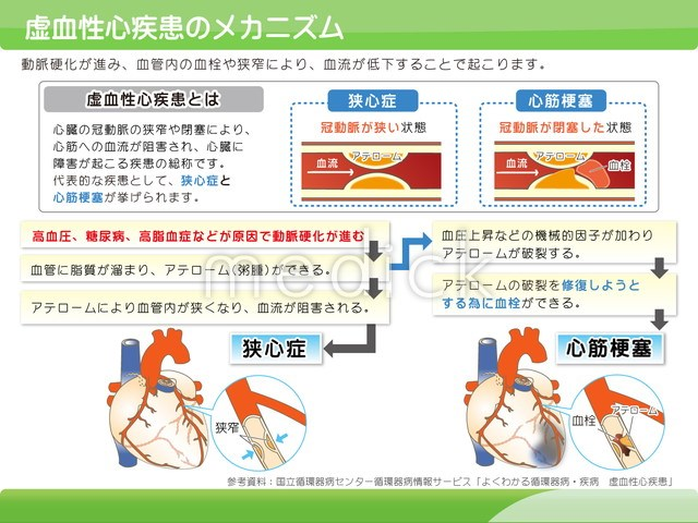 血性 心 疾患 虚 虚血性心疾患(心筋梗塞・狭心症)の症状と治療法