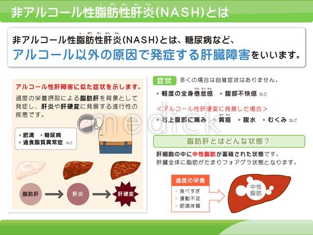 非アルコール性脂肪性肝疾患 | 肝炎情報センター