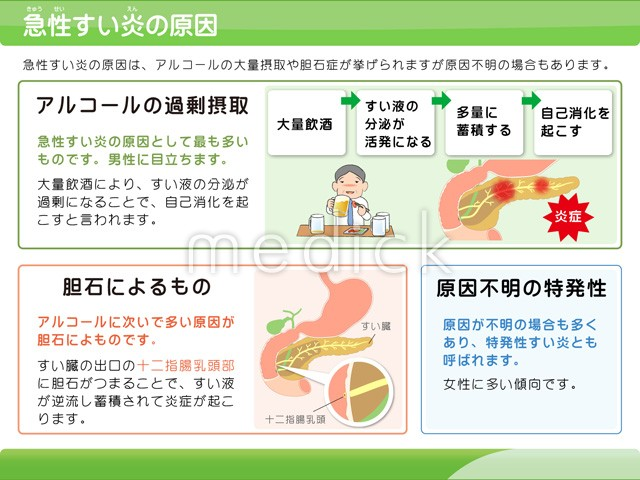 膵炎 急性