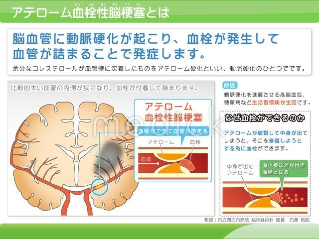 アテローム 血栓 性 脳 梗塞