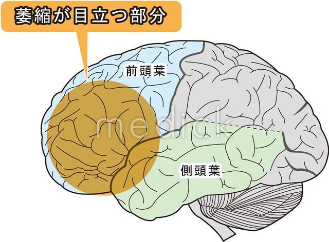 前頭側頭型認知症のイラスト - ...