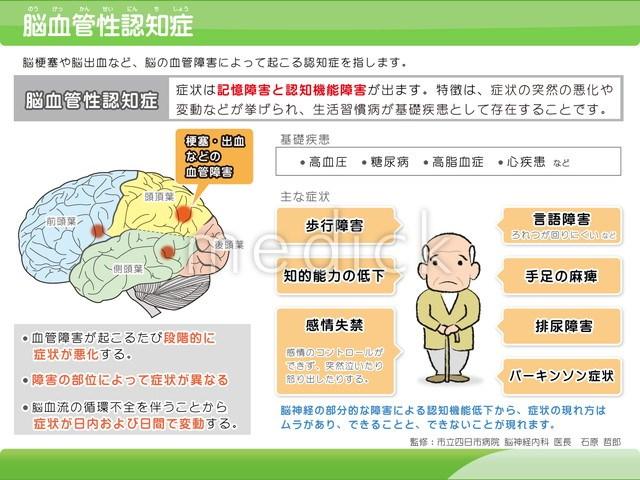 症 血管 性 認知