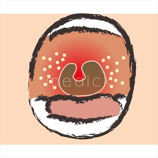 口の中が腫れるのイラスト 医療のイラスト写真動画素材販売