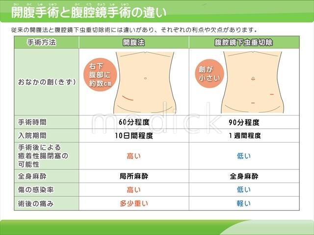 開腹手術と腹腔鏡手術の違いの説...