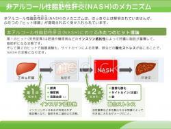 アルコール性肝疾患 | 肝炎情報センター