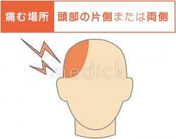 偏頭痛の痛む場所のイラスト